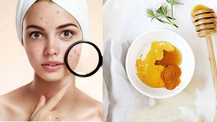 Powerful Home Remedies to treat your Acne